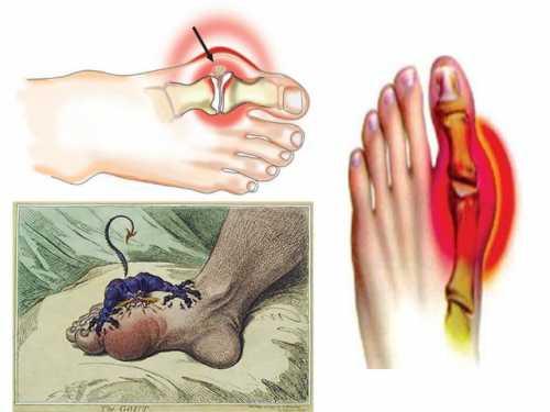тубоотит: причины заболевания, формы болезни, диагностика, лечение